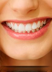Salud Global <br />Dental